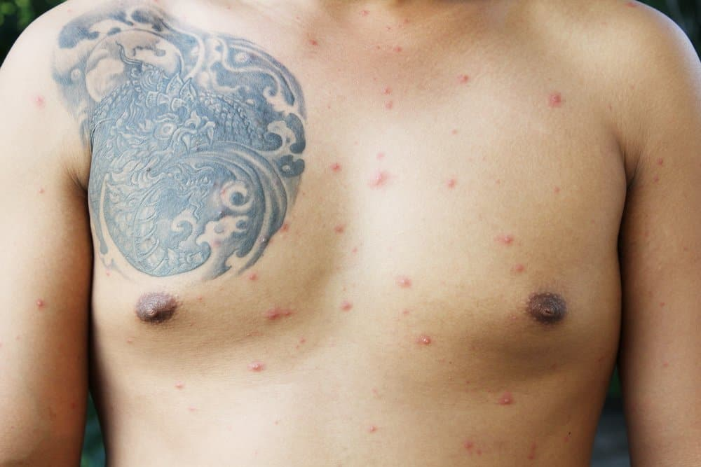 man with red bumps on tattooed chest