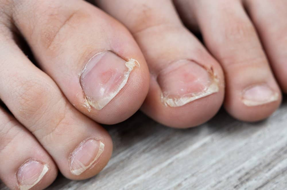 feet with overgrown cuticles and fungus