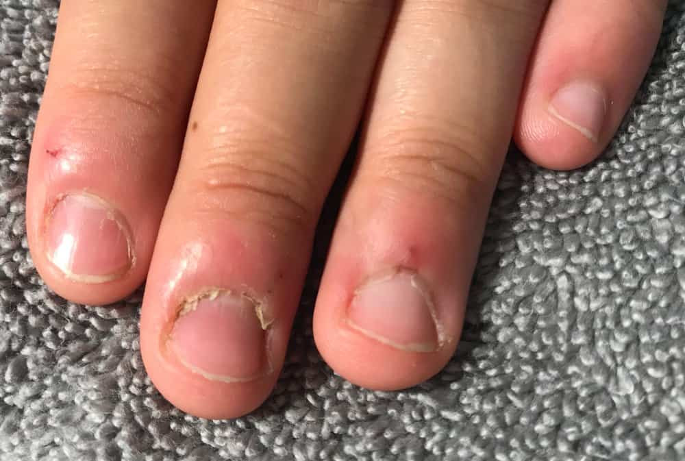 un-manicured nails with hangnails
