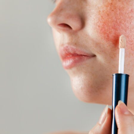The 10 Best Foundations for Rosacea in 2021