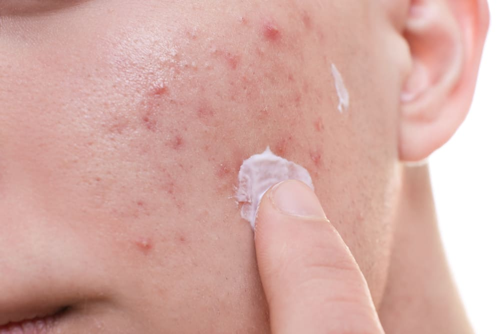 scar removal cream on acne