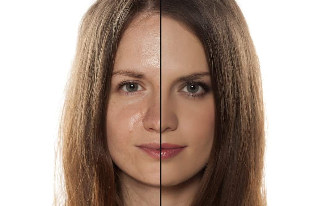 comparative photo of a woman with oily skin vs matte skin