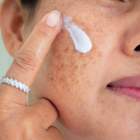 The 10 Best Safe and Effective Age Spot Removers in 2021