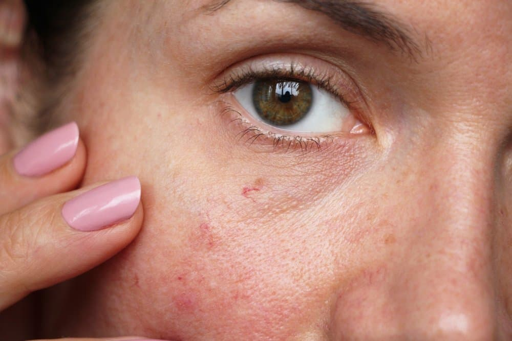 woman with sensitive skin