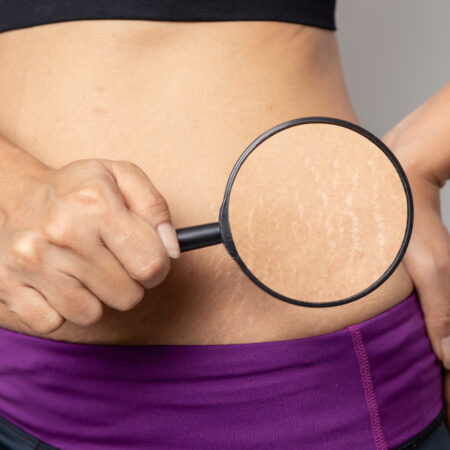 The 10 Best Stretch Mark Creams in 2021