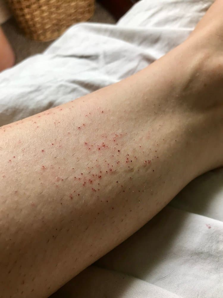 razor burn on leg