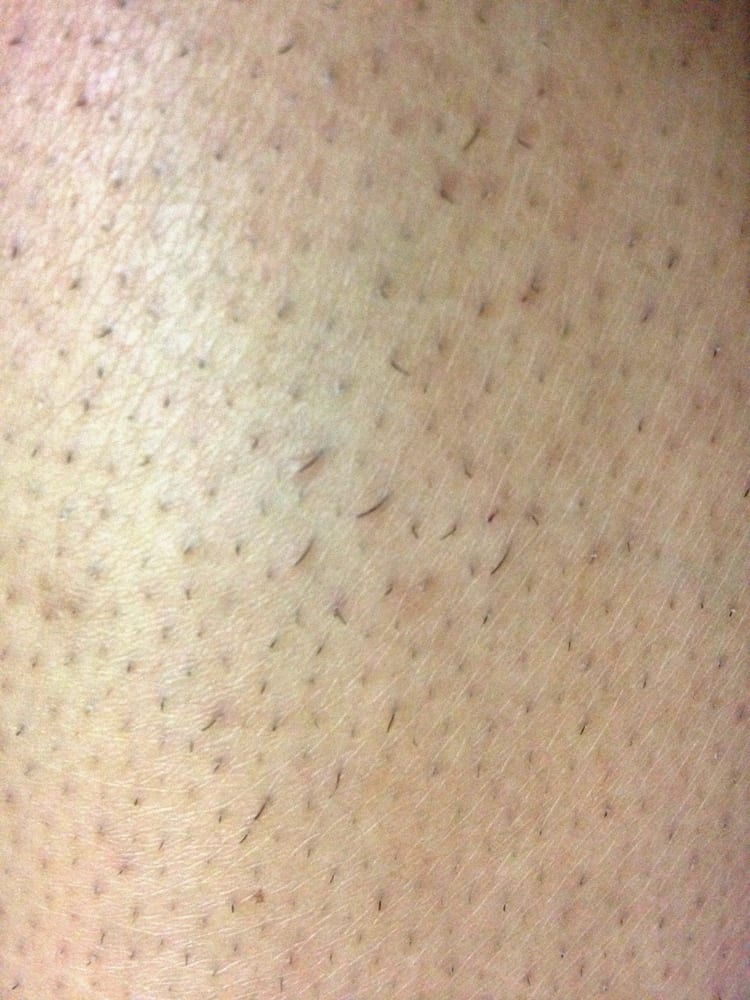 mild, non-inflamed razor bumps