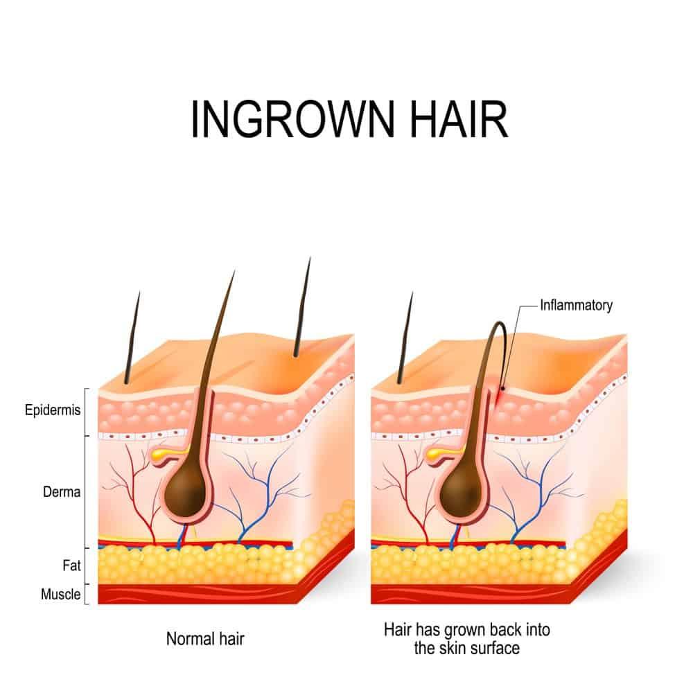 how razor bumps form
