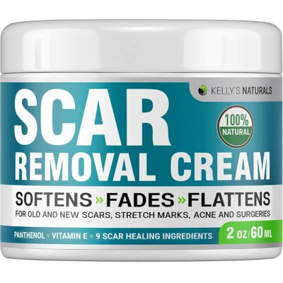 Kelly's Naturals Scar Removal Cream