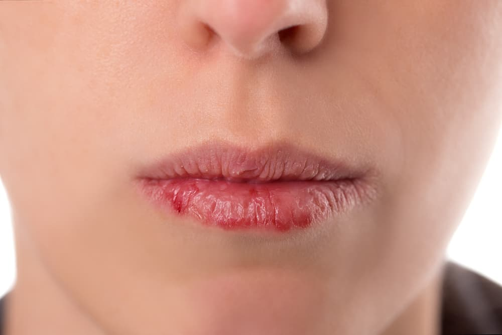 woman with sore cracked lips