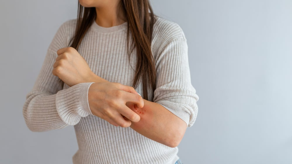 woman scratching itchy patchy skin