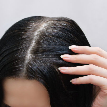 How to Remove Black Hair Dye – Your Full Guide